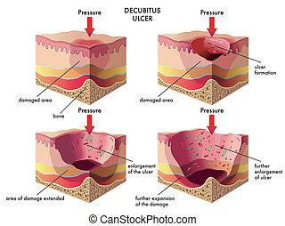 úlcera, decubitus