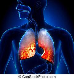 -, pneumonia, inflamatorio, cond, pulmones