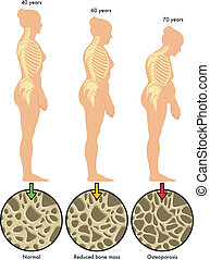 3, osteoporosis