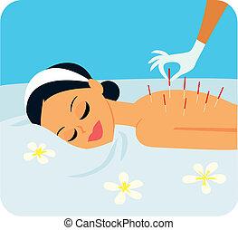 acupuntura, ilustración