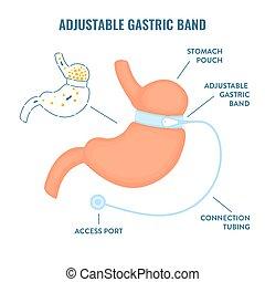 ajustable, peso, infographics, gástrico, pérdida, bariatric, cirugía, banda