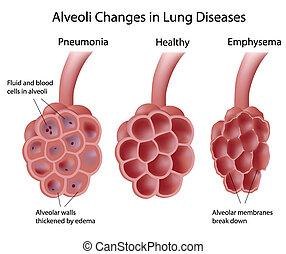 alveoli, pulmón, enfermedades