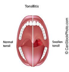amigdalitis, eps8