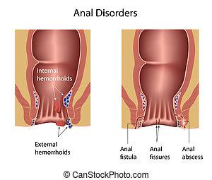 anal, desórdenes, eps8