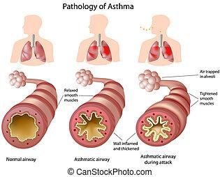 Anatomía del asma