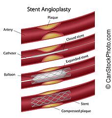 Angioplastia Stent, eps10