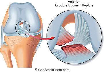anterior, cruciate, ruptura, ligamento
