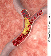 arteria, colesterol