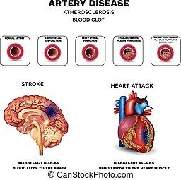 arteria, enfermedad