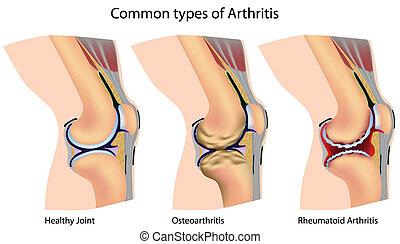 artritis, común, tipos