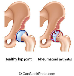 Artritis reumatoide de cadera