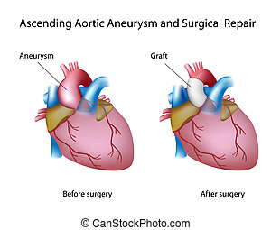 Ascendiendo el aneurisma aórtico