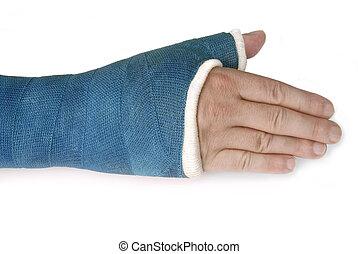 azul, fibra de vidrio, muñeca, brazo roto, molde