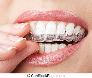 bandeja, tiza, dientes