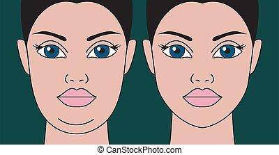 barbilla, restauración, contornos, facial, liposucción, doble, ayuda