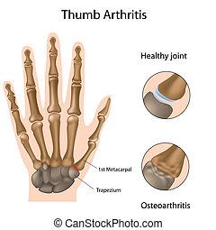 Base de artritis del pulgar, Eps8