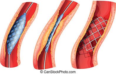 bloqueado, stent, utilizado, abierto, arteria