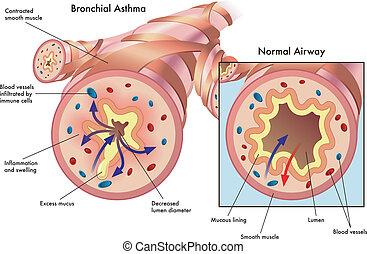 bronquial, asma