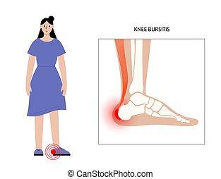 bursitis, concepto, inflamación