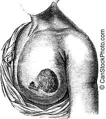 Cáncer de mama, grabado antiguo.