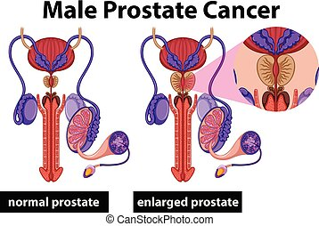Cáncer de próstata humano