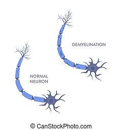 célula, demyelination, médico, infographic, nervio, cartel, proceso