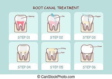 canal, diente, tratamiento, caricatura, raíz