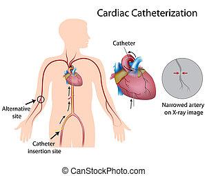 Cateterización cardíaca, Eps10