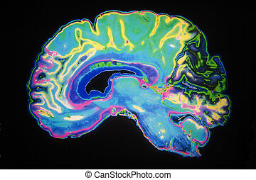 cerebro, coloreado, mri, humano, exploración