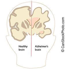 Cerebro de enfermedad de Alzheimer, eps8