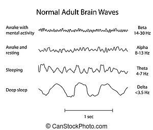cerebro, eeg, normal, eps8, ondas