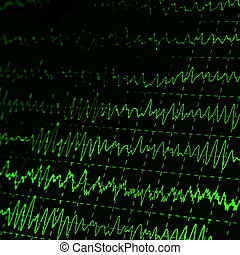 cerebro, gráfico, eeg, verde, onda