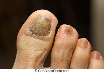 Chivos de quimioterapia uña del pie