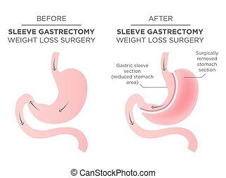 Cirugía bariátrica de grapas por un cuarto del estómago extirpado.