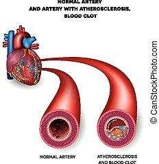 coágulo, arteria, sangre, malsano, normal