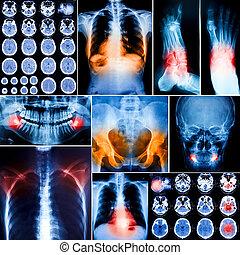 collage, foto, radiografías, humano