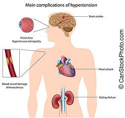 Complicaciones de hipertensión, eps8