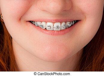 Concepto de cuidado dental. Dientes con frenos