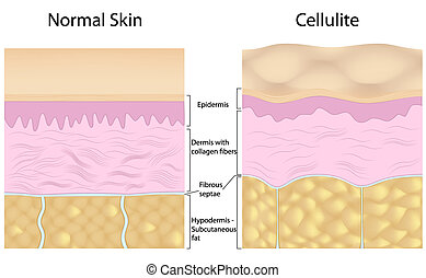 contra, cellulite, piel lisa