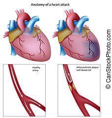 corazón, eps8, ataque