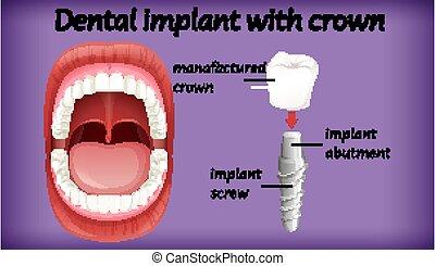 corona, implante, dental