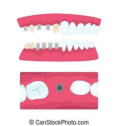Coronas dentales e implantes