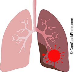 coronavirus, rojo, icono, blanco, fondo., pulmones, símbolo., humano