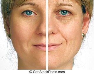 Corrección de arrugas, mitad cara