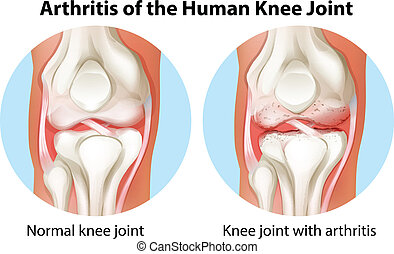 coyuntura, artritis, rodilla humana