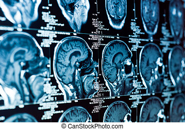 cráneo, exploración, él, cerebro, primer plano, ct