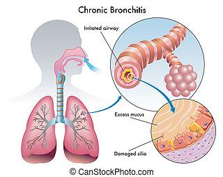 crónico, bronquitis