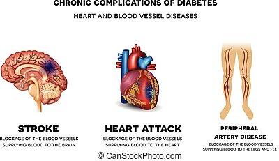 crónico, complications, diabetes
