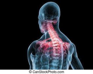 cuello, inflamado