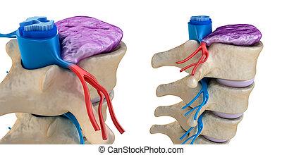 cuerda, espinal, debajo, disco que se bombea, presión